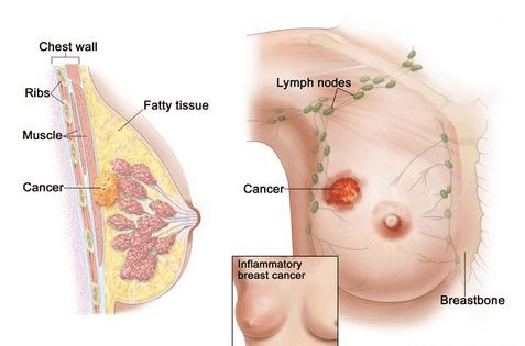 Obat Alternatif Kanker Payudara Stadium 1, 2, 3, 4